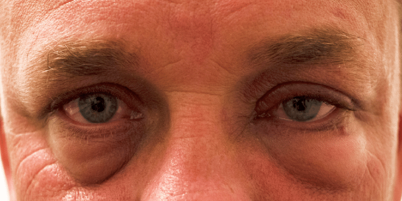 Could swollen eyes be the beginning of dry eyes?