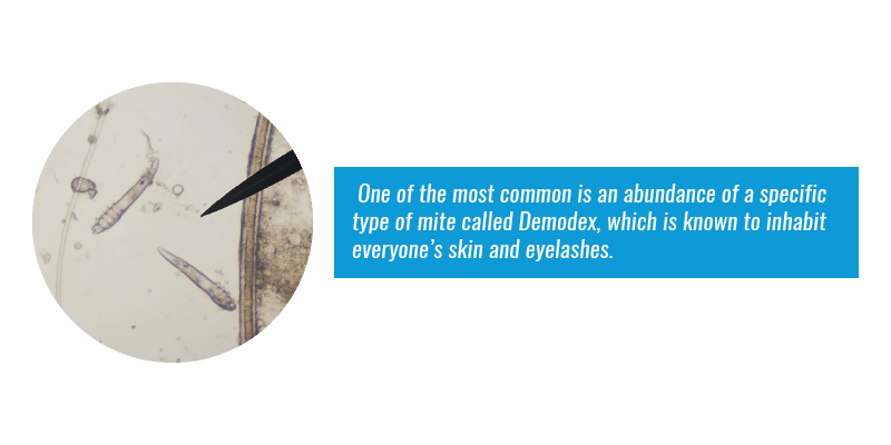 One of the most common is an abundance of a specific type of mite called Demodex, which is known to inhabit everyone's skin and eyelashes.