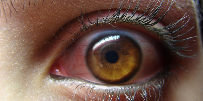 What Is Blepharitis and Its Symptoms