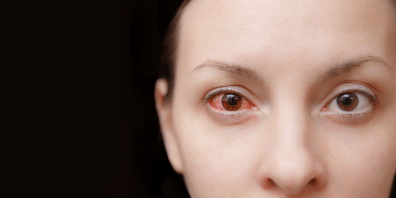 Dry Eye Syndrome- What It Is and What to Do About It