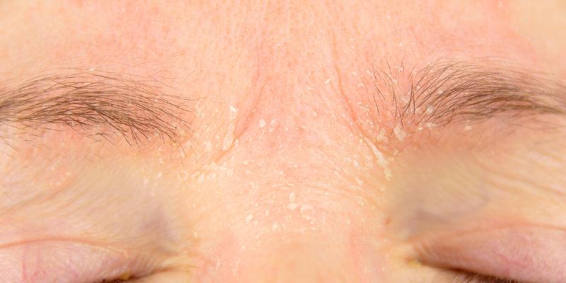 Countering the Uncomfortable Irritation of Seborrheic Dermatitis