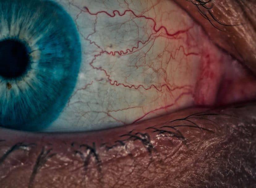 Eye Inflammation – The Hallmark of All Ocular Surface Disease