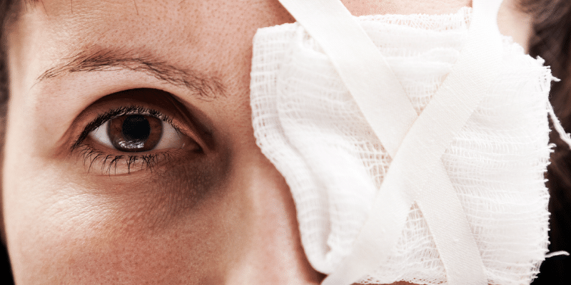 The 5 Most Common Eye Injuries