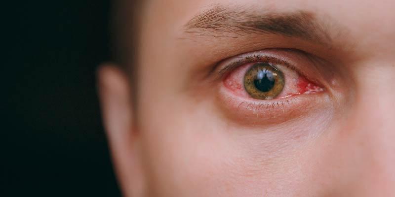 How Common Is Blepharitis
